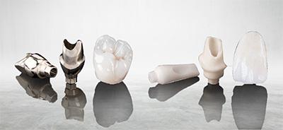 Phục hình toàn sứ trên Implant