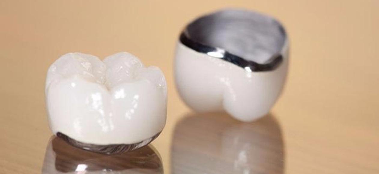 Răng sứ Chrome Cobalt